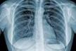 На Рівненщині найвищий показник захворювання на туберкульоз у Костопільському районі