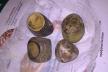 Камінь завбільшки з сірникову коробку дістали з людини хірурги Рівненщини (ФОТО)