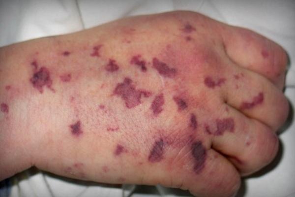 Чи загрожує жителям Рівненщини менінгококова інфекція? (Фото)
