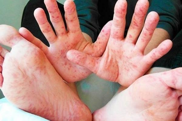 На Рівненщині триває епідемія кору