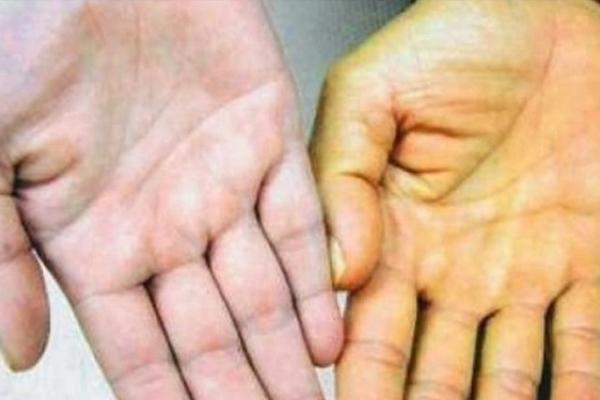 Як жителям Рівненщини вберегтися від гепатиту А?