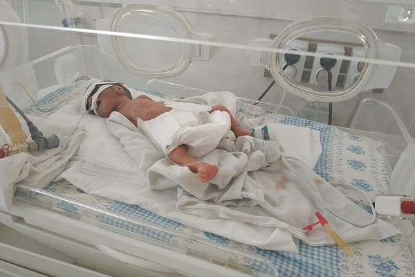 Померла маленька дівчинка, яку намагалися врятувати рівненські медики