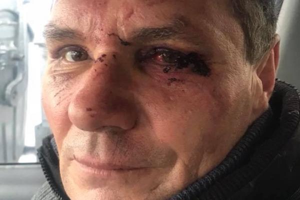 Підприємець жорстоко побив свого працівника - вантажника з ринку «Дикого» (Фото)