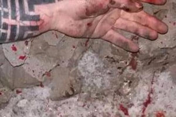Особу чоловіка, який загинув на залізниці у Здолбунові, встановили за рідкісним татуюванням на руці (Фото)
