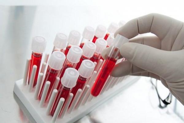 У демидівській лікарні з'явиться сучасний аналізатор крові