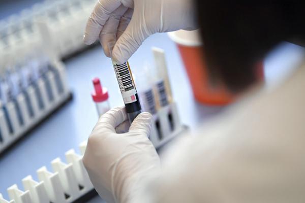 На Рівненщині стався незвичайний випадок захворювання на коронавірус