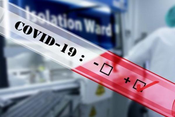На Рівненщині коронавірус виявили у п'ятьох працівників сірникової фабрики