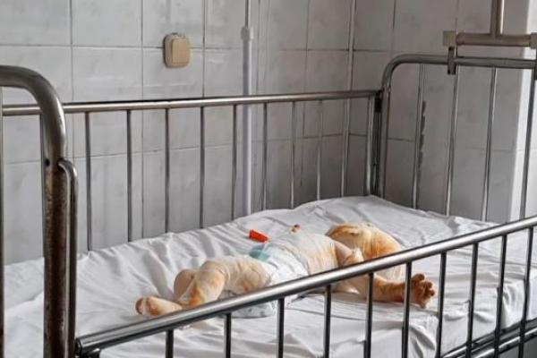 У Рівненській області трирічний хлопчик ненароком підпалив ковдру восьмимісячного братика (Відео)