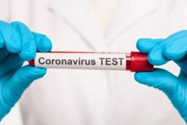 Двох жителів Рівненщини підозрюють у підробці негативних ПЛР-тестів