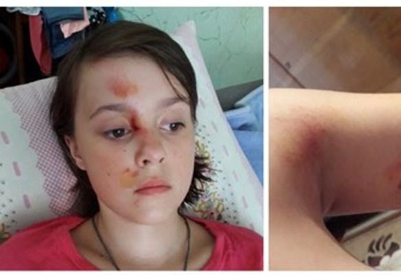 Кримінальне провадження відкрили у Вараші за фактом травмування дитини на атракціоні